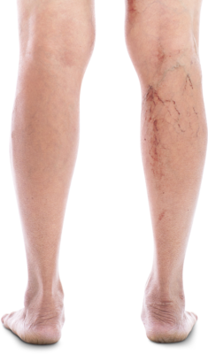 Vein Doctor New York before and after Sclerotherapy