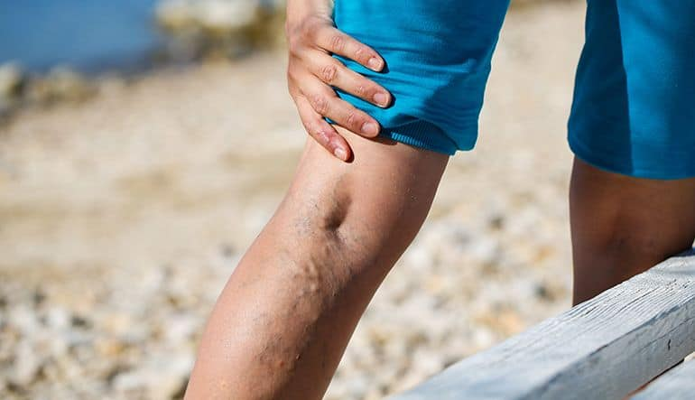 Excellence in Varicose Veins Treatment and Prevention