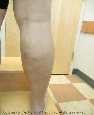 Can Venous Insufficiency Be Cured? Vein Doctor Varicose Veins on Leg