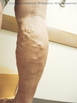 Varicose Veins and Spider Veins