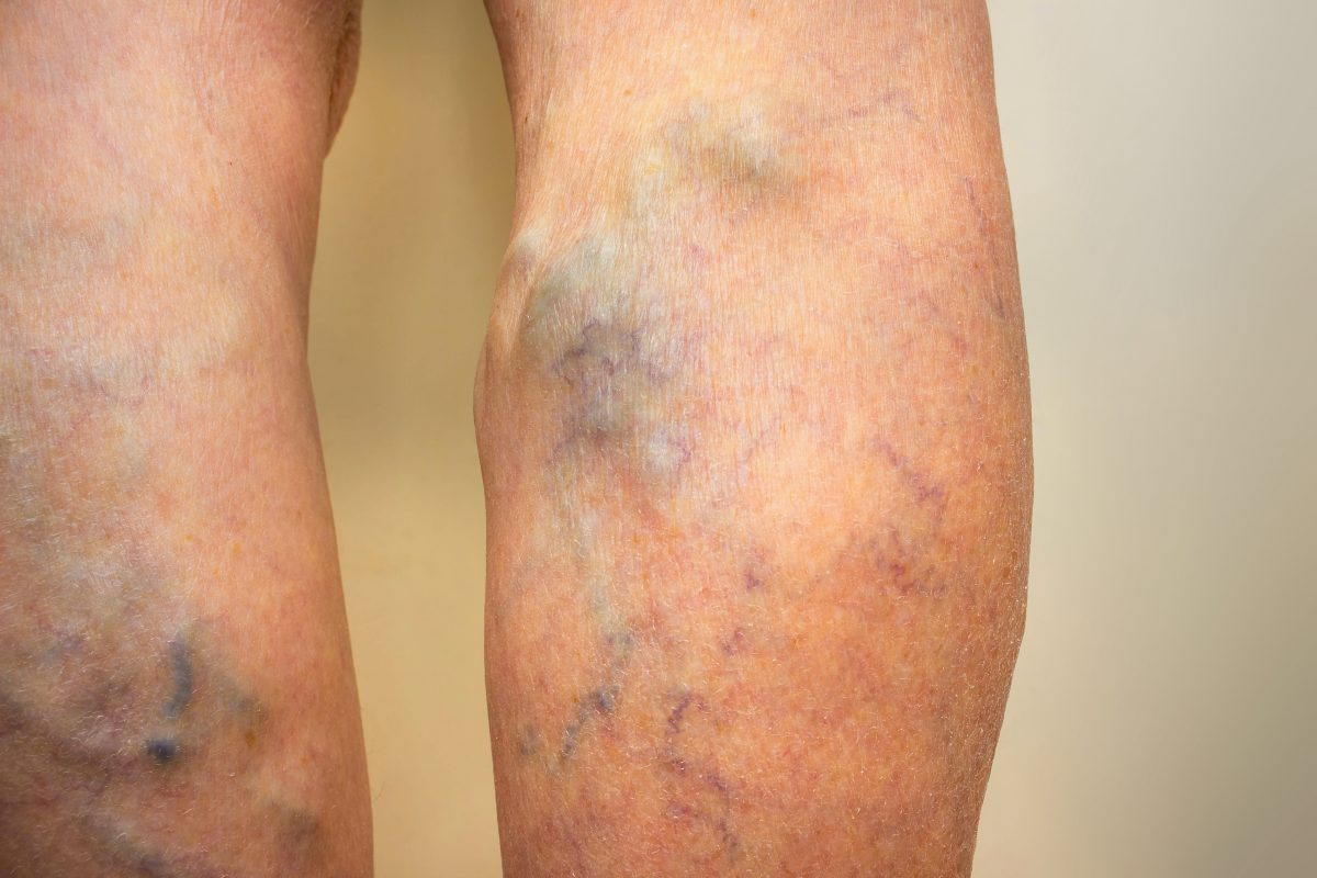 Can Venous Insufficiency Be Cured? | Leg Veins Treatment Before and