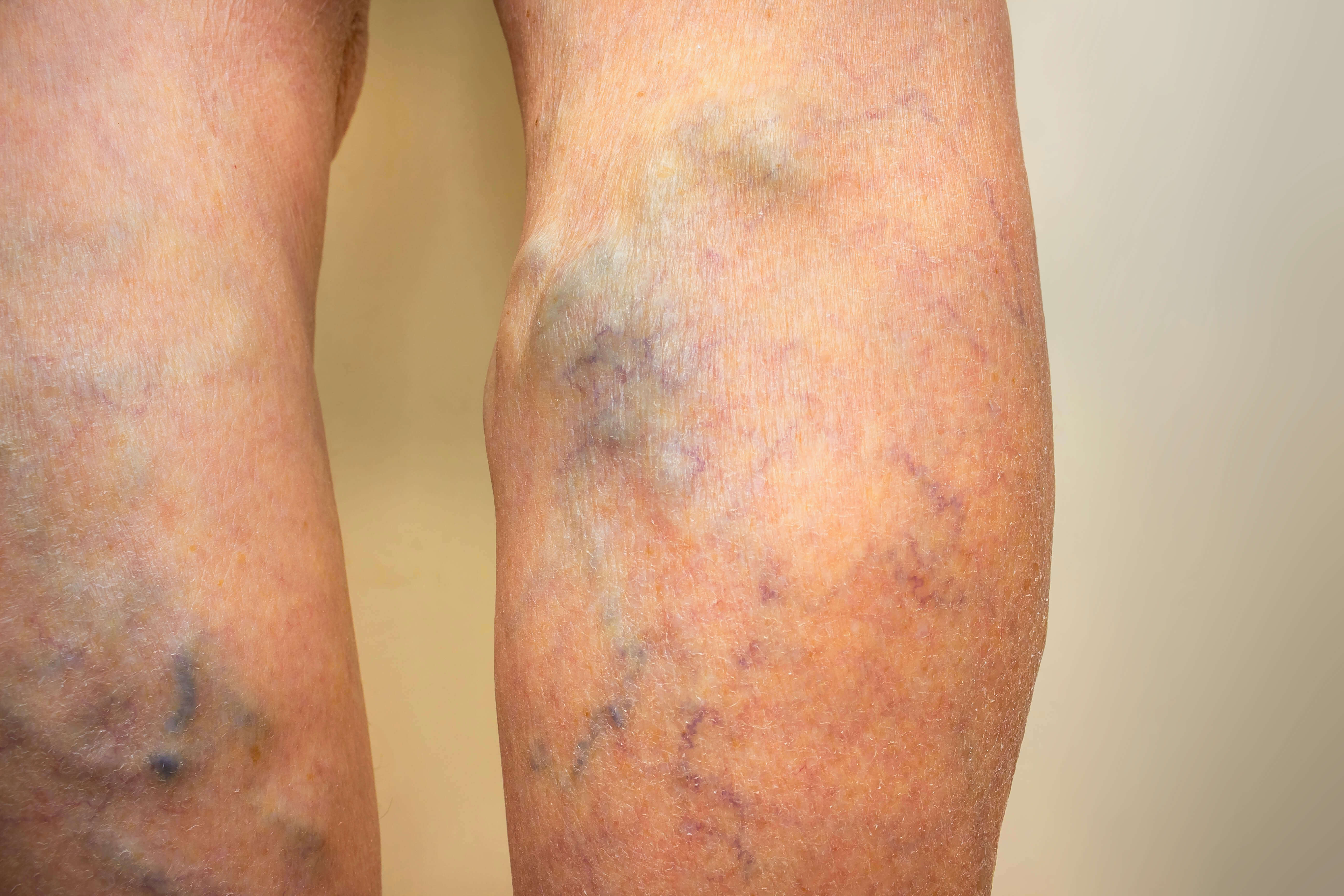 If you want to get treatment for varicose veins, a man factor that you would want to consider is cost. This articles explores the various options for low cost varicose vein treatment.
