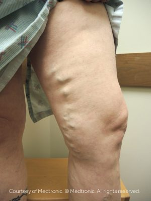 The cost of varicose veins treatment depends on whether you have symptoms. If you have pain or discomfort, insurance will usually cover the cost of the procedure.