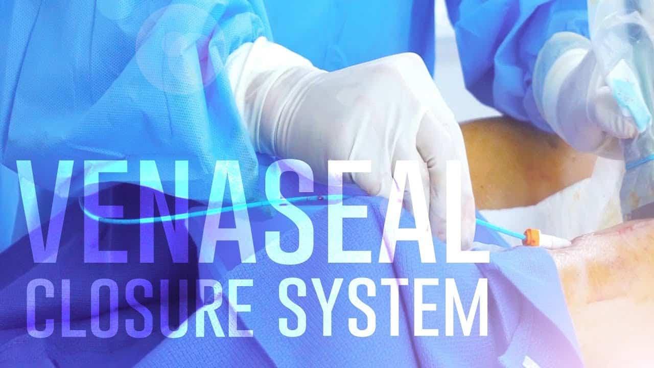 VenaSeal - Video Thumbnail