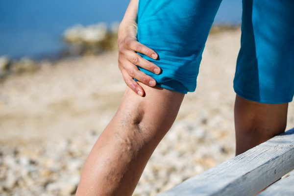 Leg cramps are due to a number of different conditions, including vein disease. Learn more about the causes of leg cramps and what type of doctor can help.