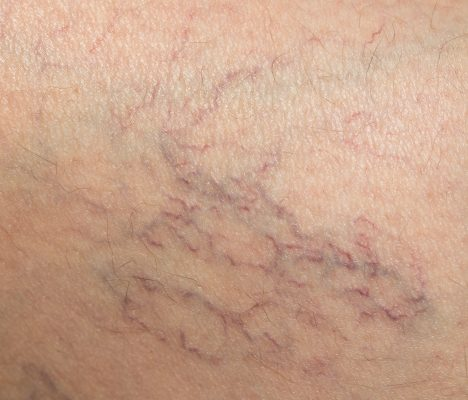 Spider Veins and Varicose Veins Need Sclerotherapy from a Vein Doctor NY or Vein Doctor NJ