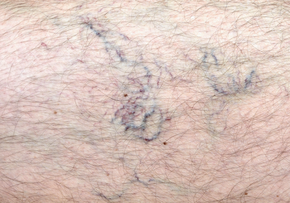 Worried about the purple, unsightly blemishes caused by veins in your legs? This list describes scientifically proven methods to get rid of spider veins fast.