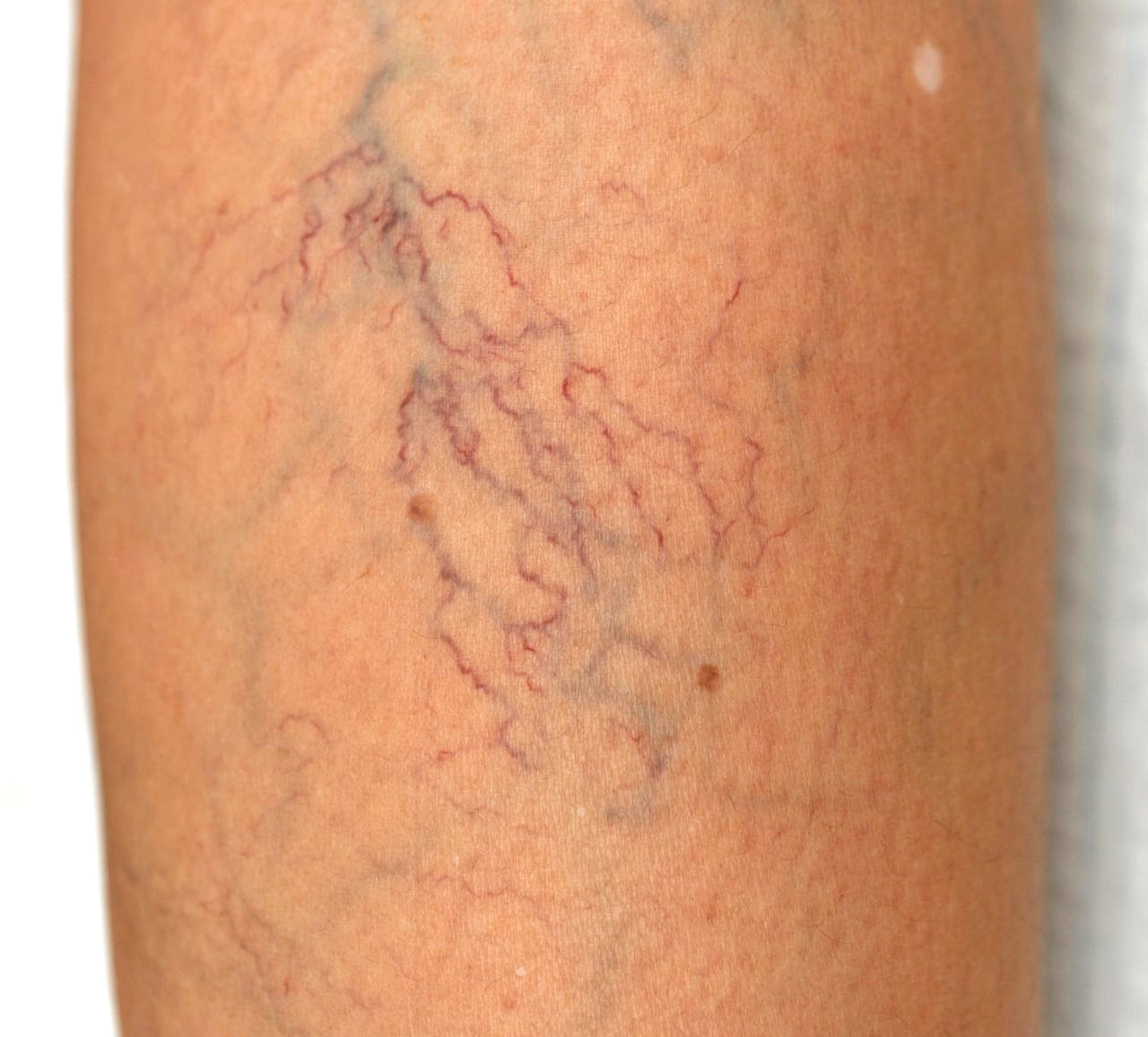 Spider Veins can be physically uncomfortable, ugly, and a warning sign of a dangerous vein problem called venous insufficiency. In this article, you will learn what spider veins are, how to get rid of spider veins, and where you can find a reliable vein treatment clinic.