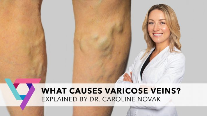 Compression hose for varicose veins is a simple treatment that may reduce or reduce the symptoms of venous disorders. When compression therapy isn't enough, there are other options.