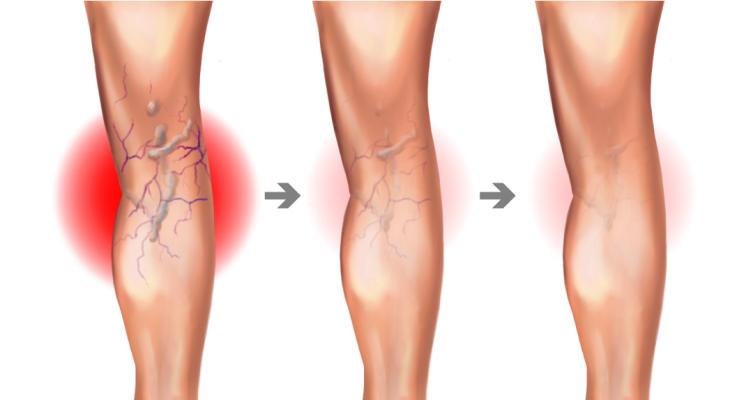 Before you treat varicose veins, treat the underlying cause