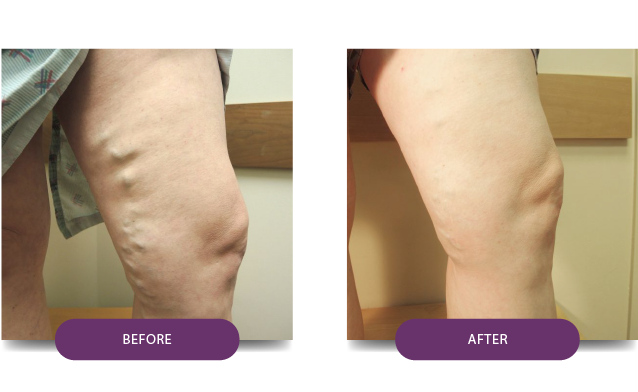 BeforeAfter1-Patient-13-After-medtronic-vein-treatment-center-VIP-medical-group