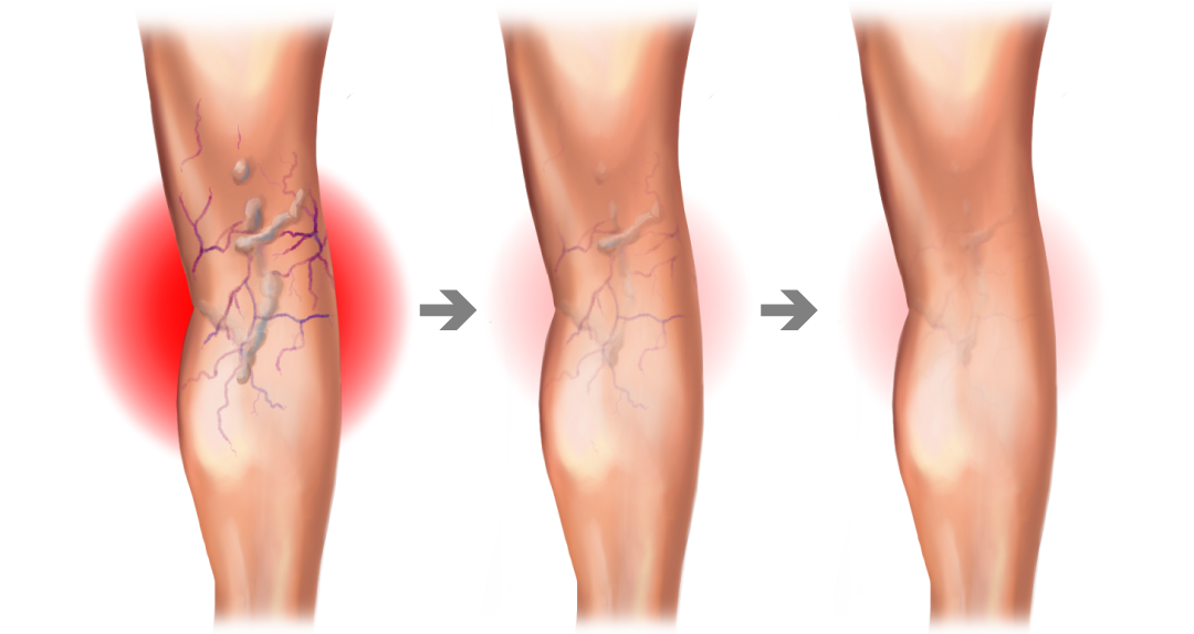 VIP-leg-graphic-arrows-faded