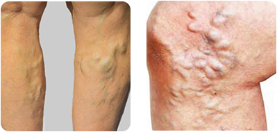 Which of the following best describes your varicose veins? and other quick questions – a simple quiz to help you decide whether it's time to see a vein specialist.