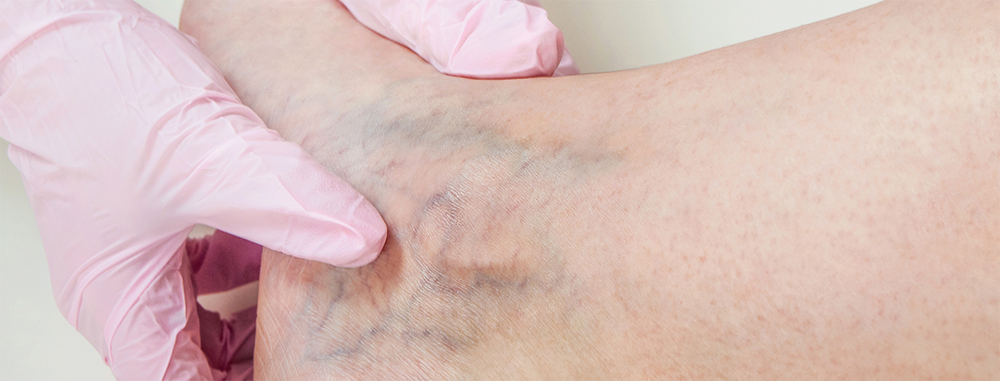 Varicose and Spider Veins | Vein Diseases