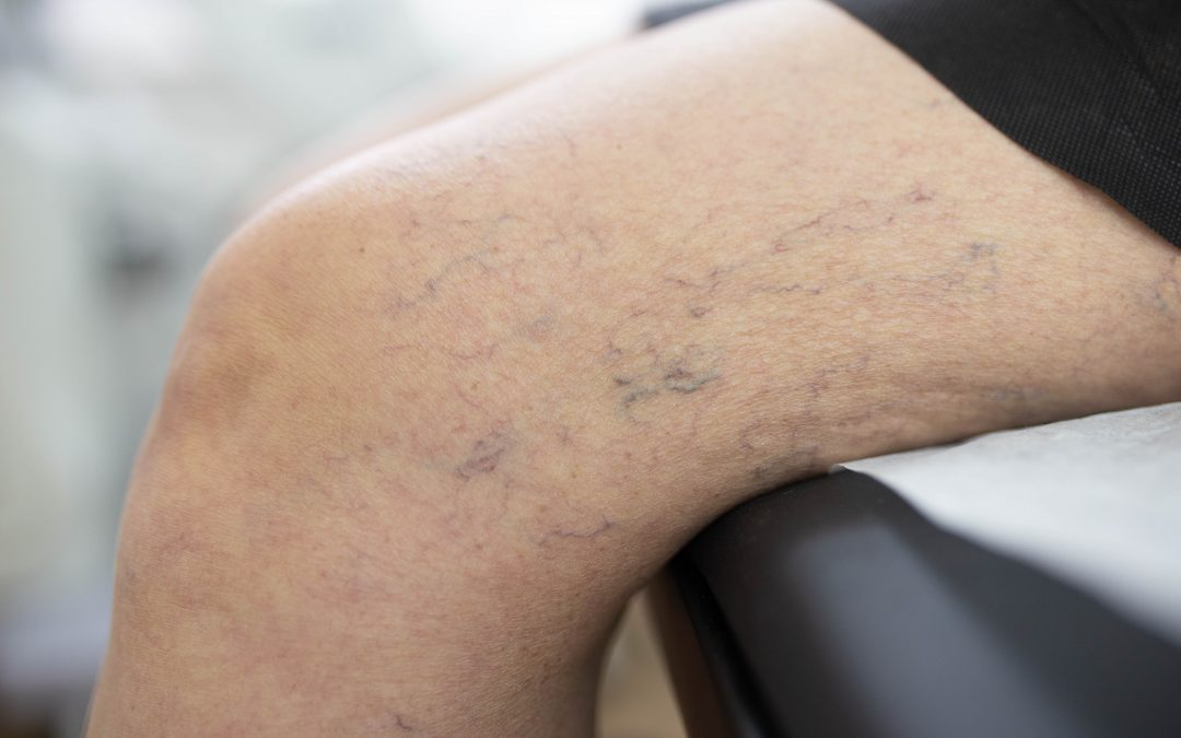Top Options for Spider Vein Treatment in NYC | Harvard Trained Vein Doctors | Spider and Varicose Vein Treatment Center