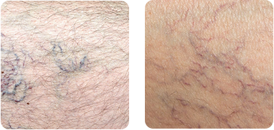 Spider veins may look alarming, but they need not be a cause for concern. We help you understand why they appear, how to prevent them, and when you need to seek treatment.
