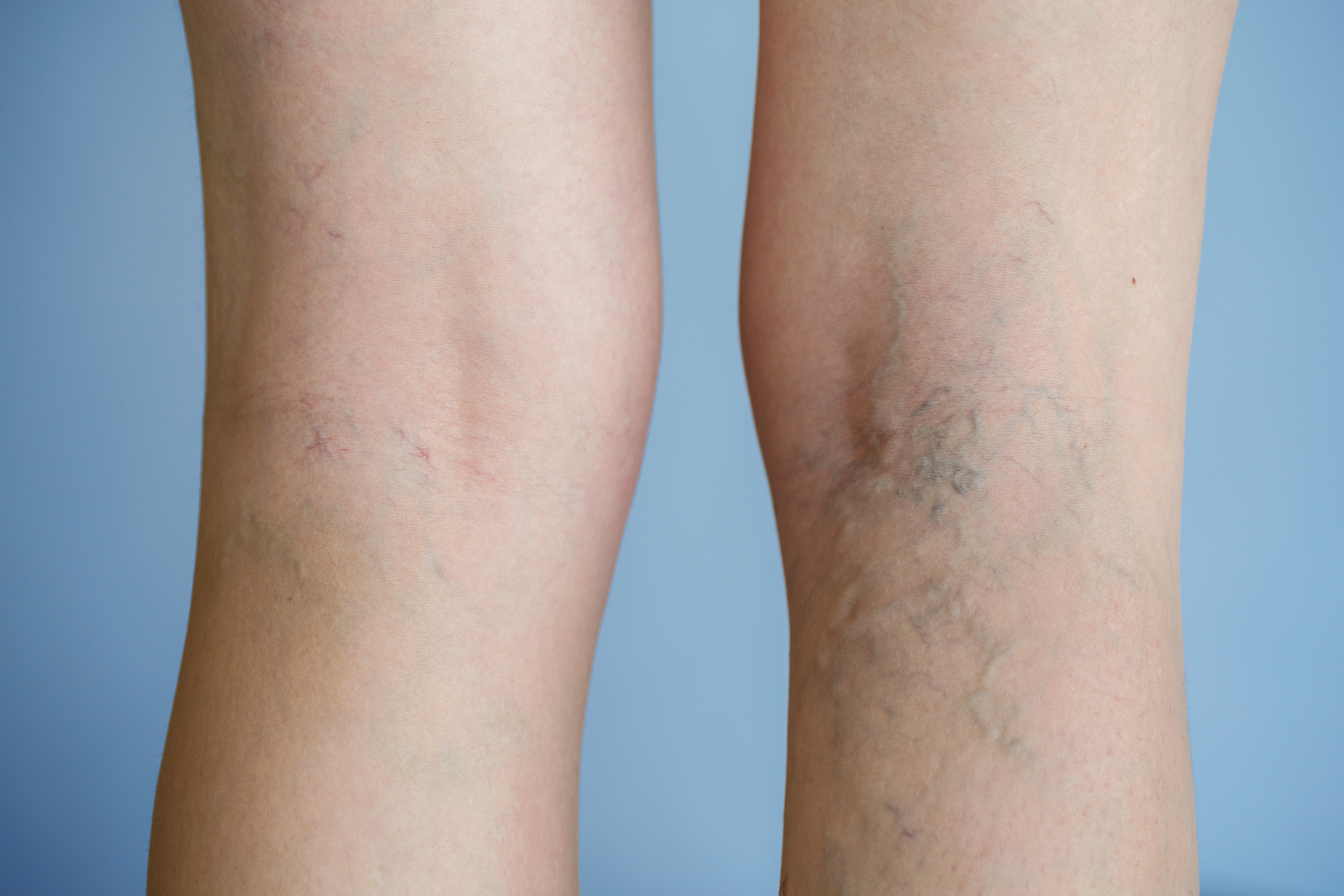 Spider Veins can be treated in several different ways; a specialized vein doctor will tailor the treatment to each individual.