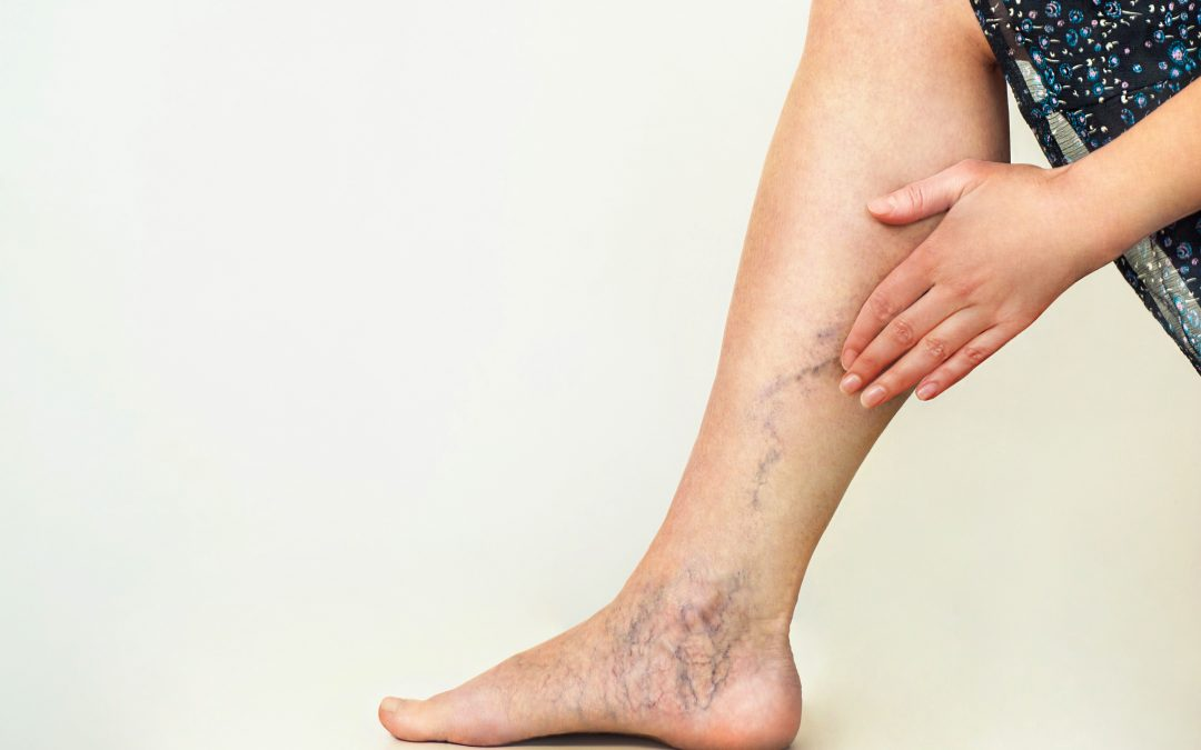 Can Venous Insufficiency Be Cured | Harvard Trained Vein Doctors | Spider and Varicose Vein Treatment Center