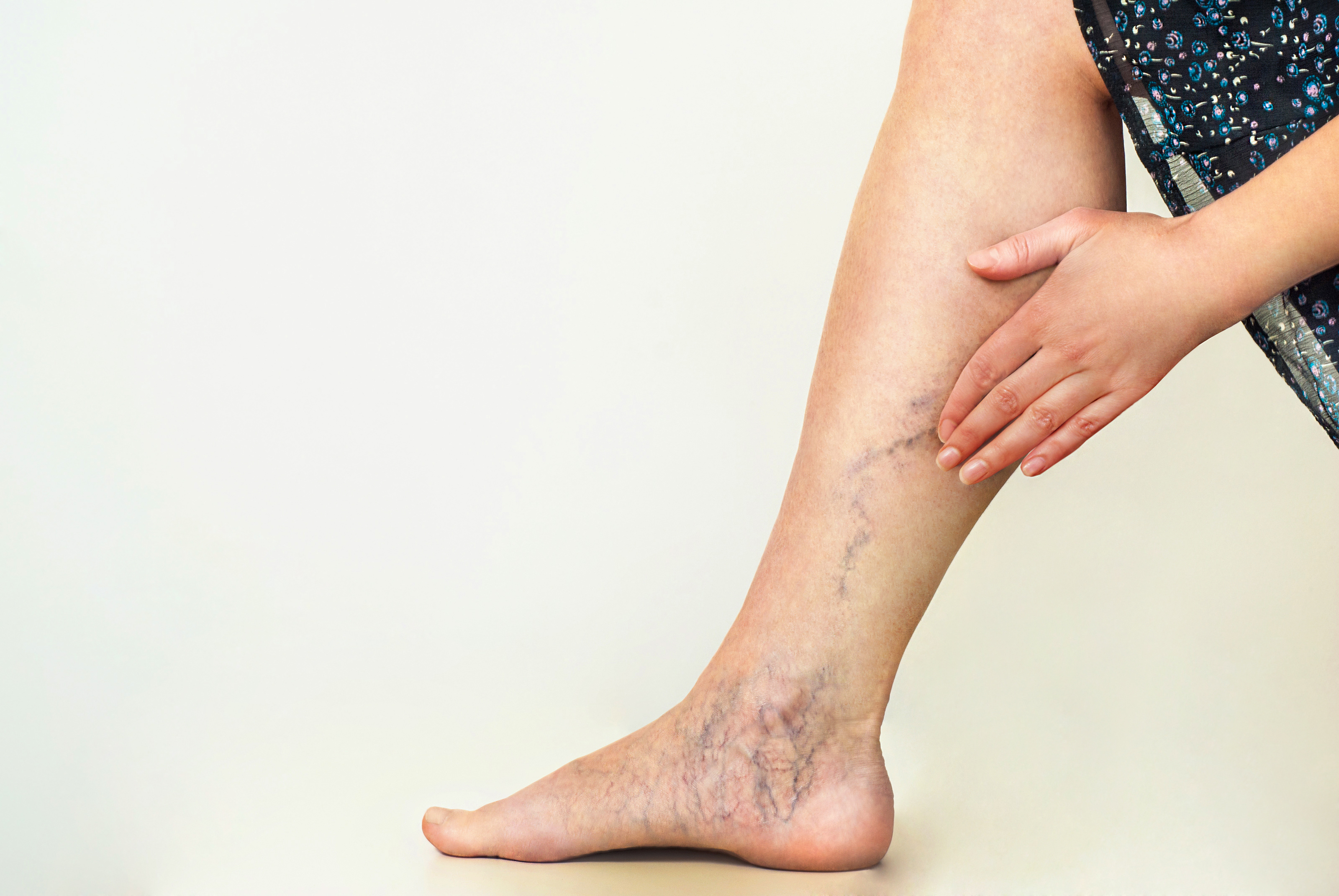 Looking for a comfortable solution to your vein problem? Look at the minimally invasive treatment options available at our varicose vein treatment center in San Diego.