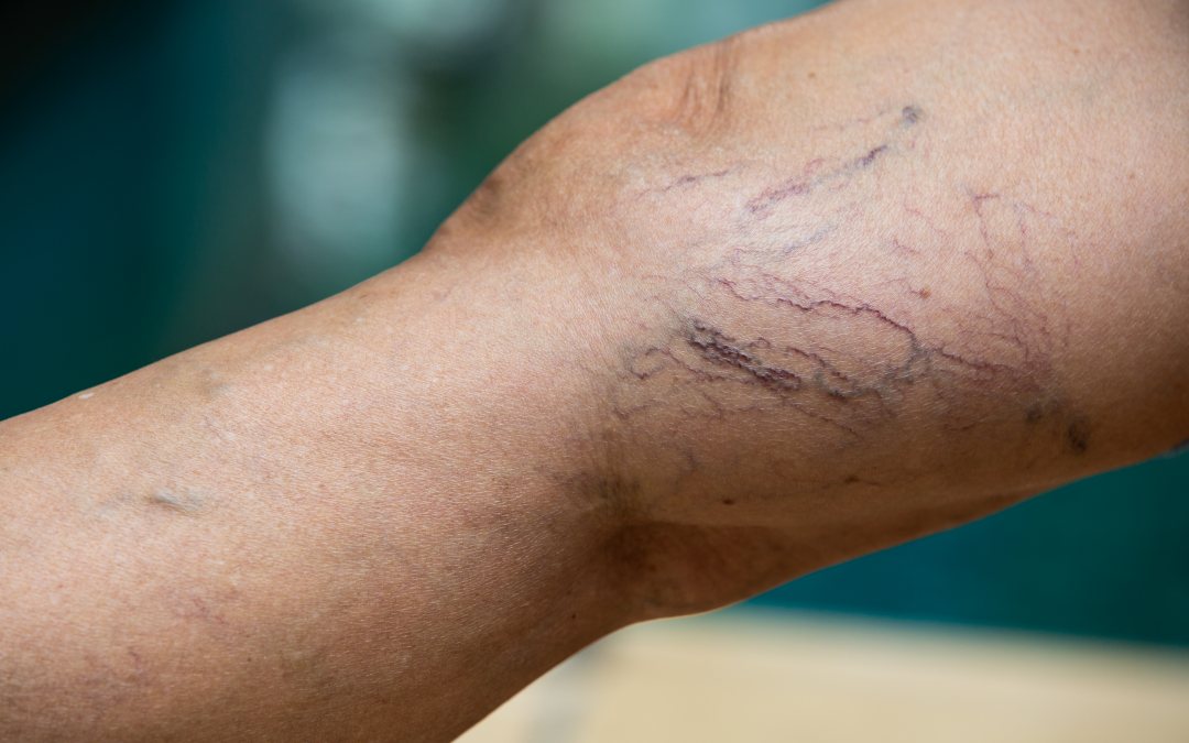 8 Must-Have Qualities in a Varicose Vein Doctor in NY