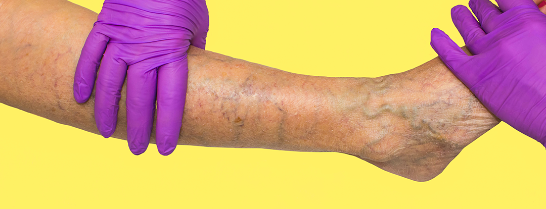 What Conditions Can I Visit a Varicose Vein Doctor for? A Top Vascular Surgeon Answers