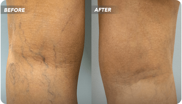 If you have decided to get your varicose veins removed, you probably want to know all about the treatment process. This article discusses what you need to do before and after varicose vein removal.