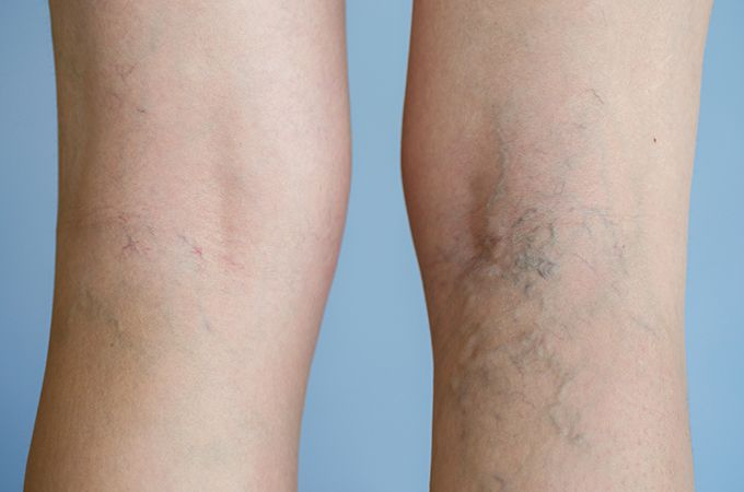 A Varicose Vein Doctor in SD Discusses Varicose Veins and Spider Veins