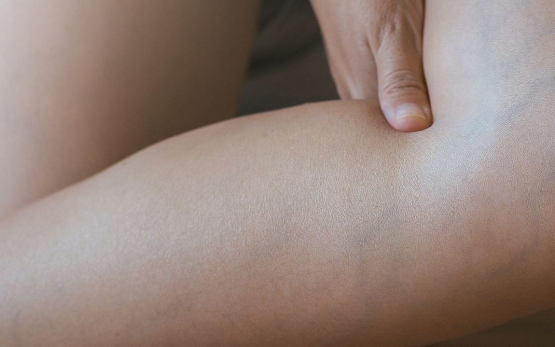 A 9-Step Guide to Finding the Best Varicose Vein Doctor in California