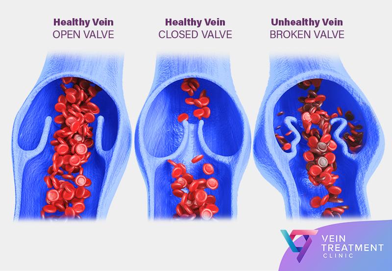 Vein Treatment Clinic Vein Example of Broken Valve