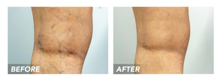 Before-After-SpiderVeins-Patient2 (1)