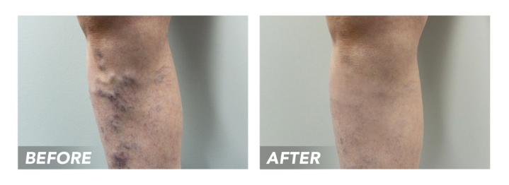 Before-After-VaricoseVeins-Patient3 (1)