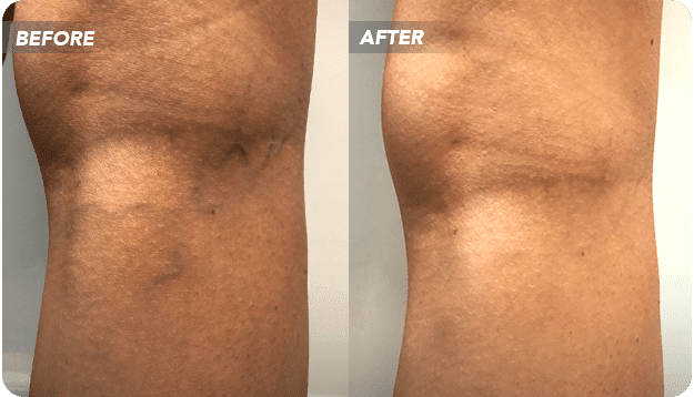 Have you been considering laser treatment for spider veins? This article will tell you why laser vein removal centers may not be the ideal option – and what you should look for instead.