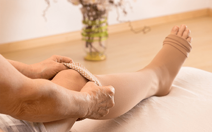 Vein Treatment Clinic Compression Stockings Sclerotherapy