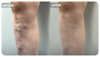 6 Qualities of the Best Varicose Vein Center in NYC
