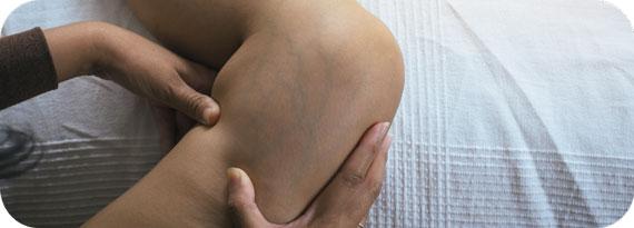 vein treatment - spider vein treatment