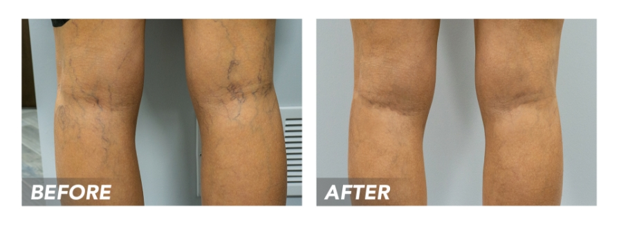 Before-After-SpiderVeins-Patient1