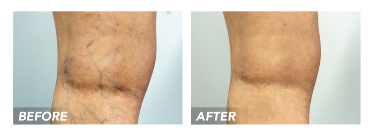Before-After-SpiderVeins-Patient2