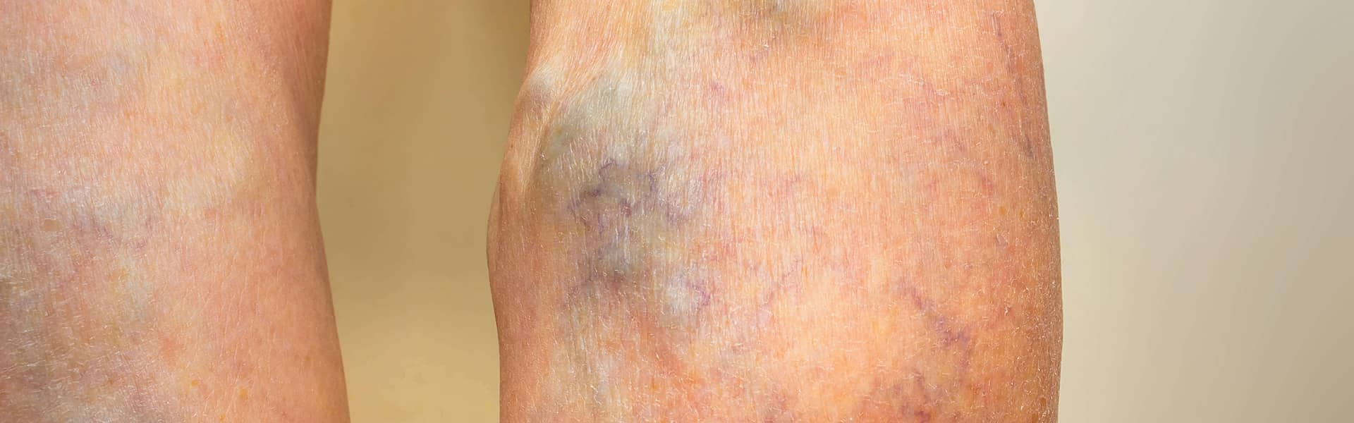 Varicose veins – Blog background photo – Vein Treatment Clinic in NY